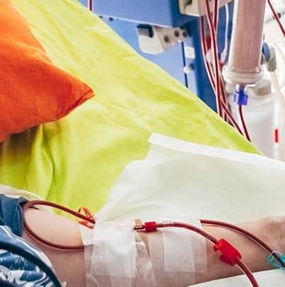 Les plaies chroniques en dialyse